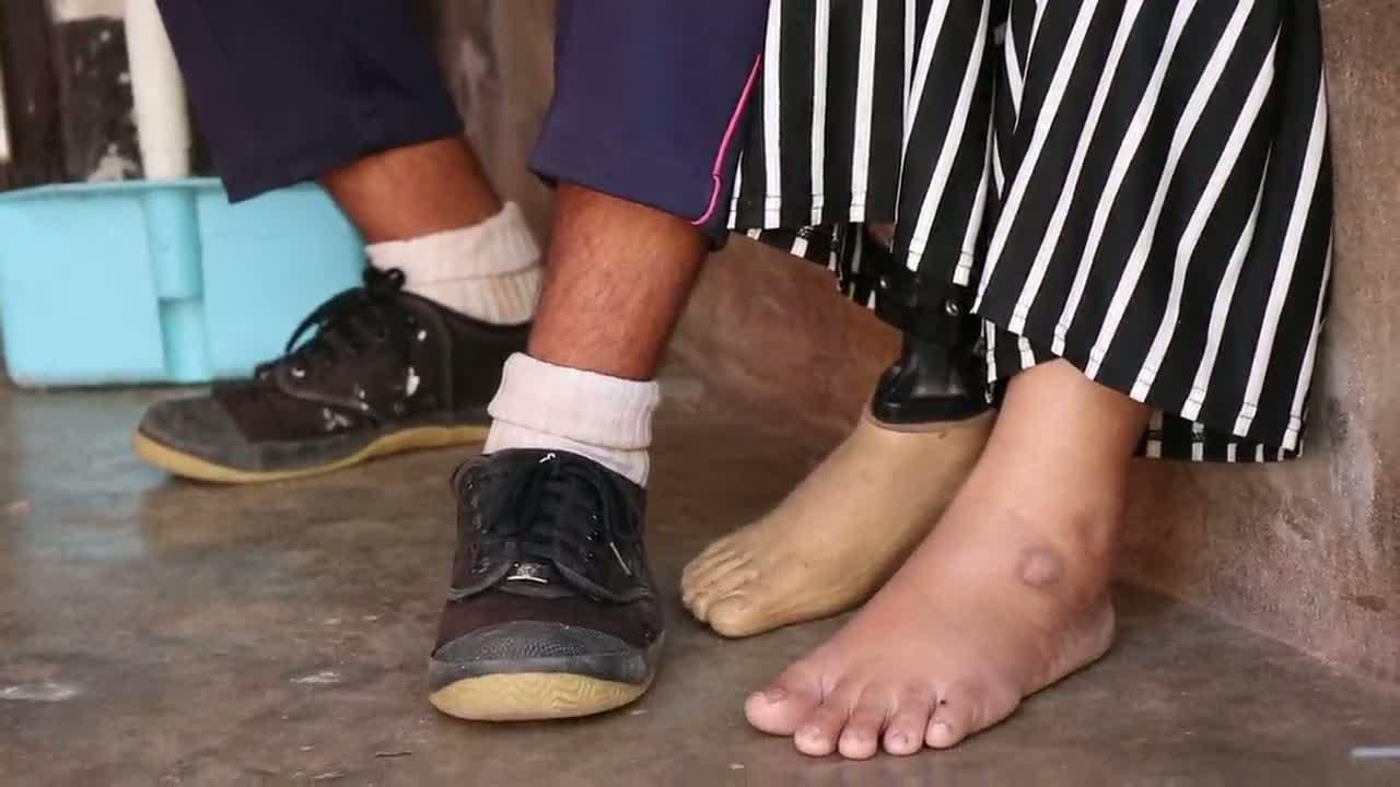 อุดรธานี - วอนช่วย นร.ม.2 เรียนดีแม่พิการพ่อทิ้งต้องรับจ้างกรีดยางหาเงินไปโรงเรียน